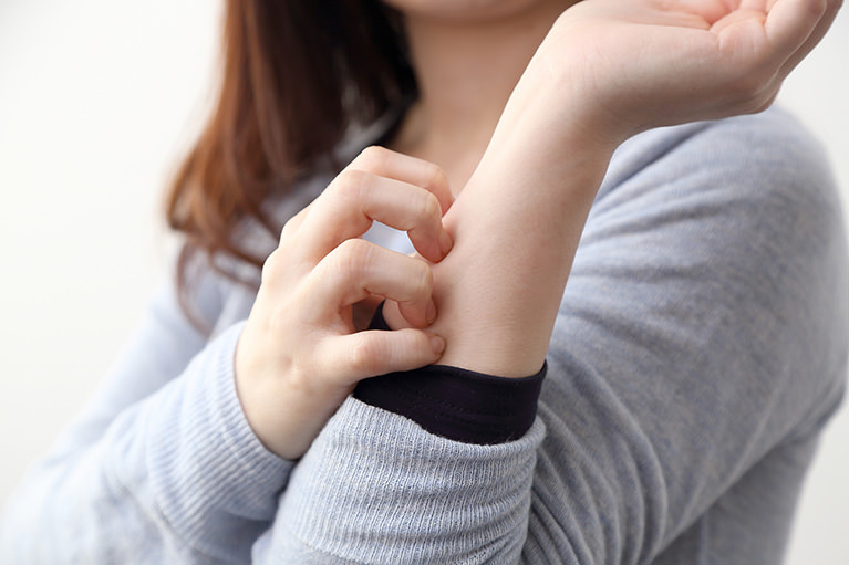 蕁麻疹はどのような人や場合に起こるのか